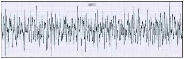 振动干扰下涡街流量计信号曲线