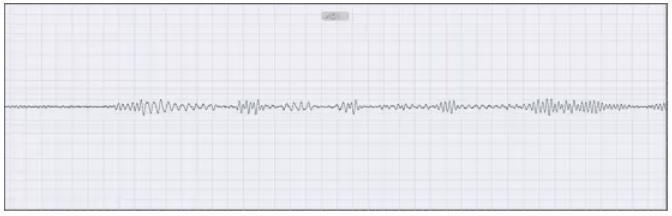 高分辨率干扰信号频谱识别